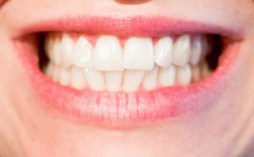 Obecna technologia używana w salonach stomatologii estetycznej zdoła spowodować, że odbierzemy śliczny uśmiech.
