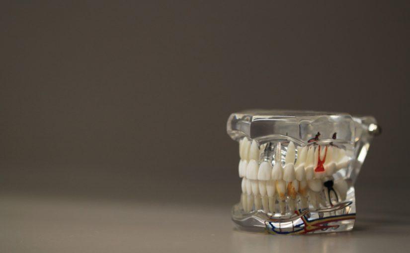 Zła droga odżywiania się to większe deficyty w zębach natomiast również ich zgubę